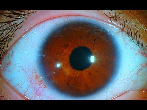 تعرف على ضغط العين و أنواعه, وهل التدخل الجراحي يفيد؟ do.php?img=44915