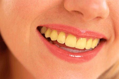 اسباب اصفرار الاسنان والعلاج 1398861272081.jpg
